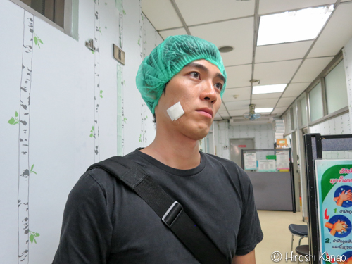 タイでホクロ除去 19