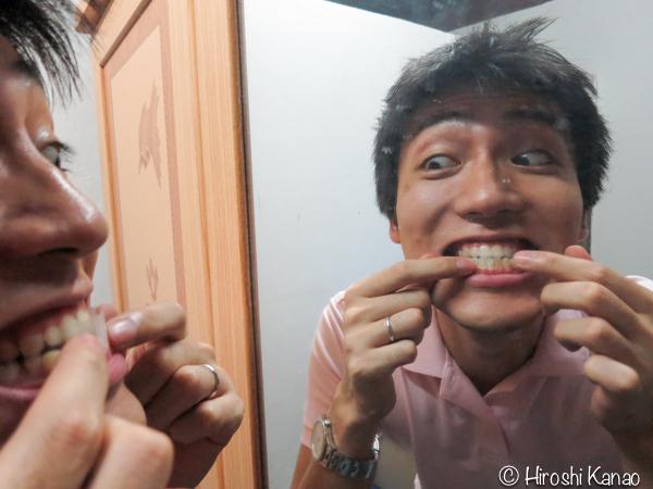 歯のホワイトニングテープ 7