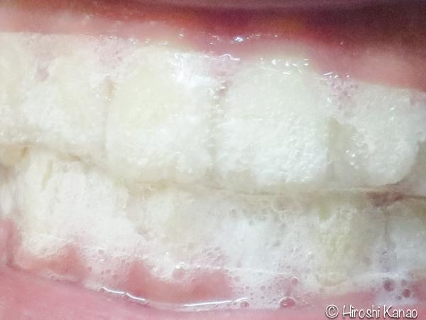 歯のホワイトニングテープ 12
