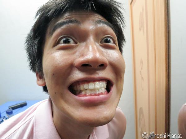 歯のホワイトニングテープ 10
